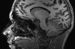 IRM cerveau humain  - Laboratoire de neurosciences cognitives